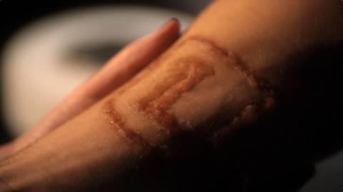 Clark Luthor's arm